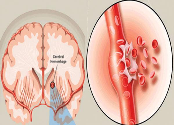 Bệnh nhân xuất huyết não nặng có tỷ lệ tử vong cao