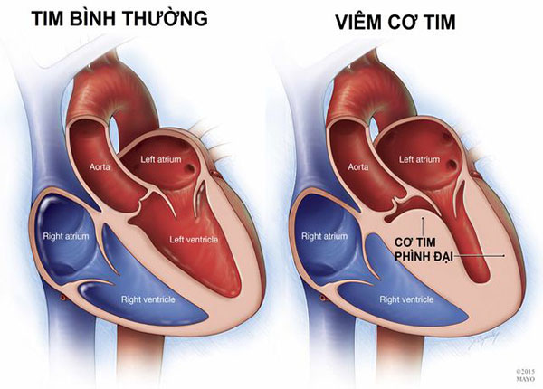 Bệnh viêm cơ tim thường xảy ra ở người trẻ tuổi