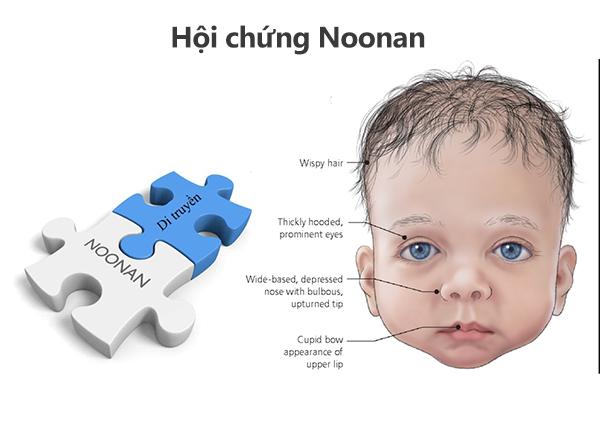 Hội chứng Noonan là một tình trạng rối loạn di truyền xảy ra từ khi mới sinh