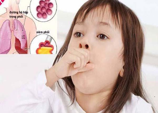 Trẻ em rất dễ mắc bệnh viêm phổi