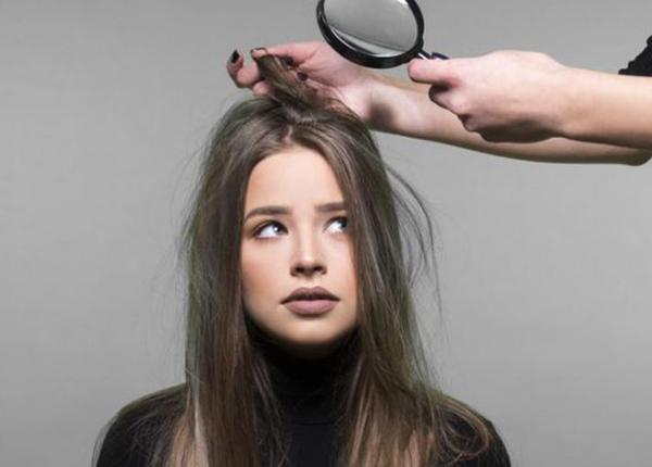 Hướng dẫn trị gàu và rụng tóc hiệu quả tại nhà