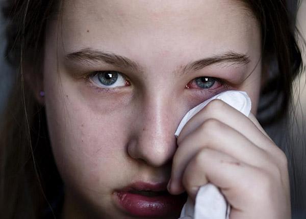 Bệnh zona thần kinh ở mắt