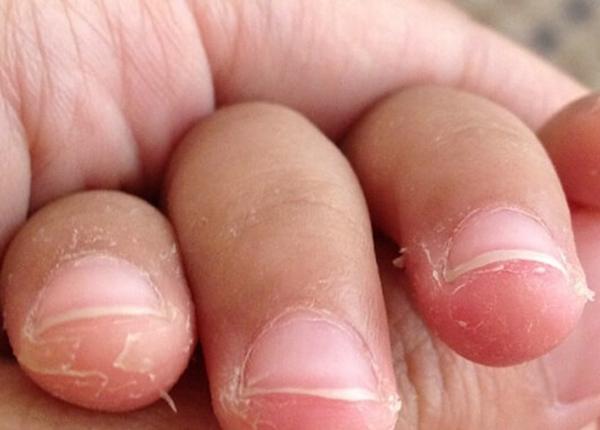ngón tay bị lột da