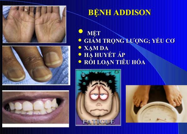 bệnh Addison